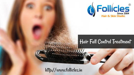 How to Control Hair Fall | Hair Loss Treatment for Men | Hair Fall Treatment Hyderabad