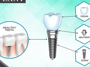 Dental implant services in India | Dental implant in Chennai | Senthil Dental Care