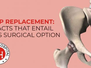 Hip Replacement Surgery Cost in Ludhiana