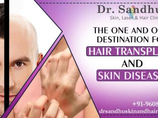 Reputed and Low-cost Hair Transplant Centre in India