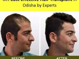 Get Cost effective Hair Transplant in Odisha by Experts