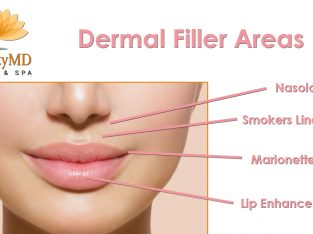 Dermal Fillers Specialist West Palm Beach