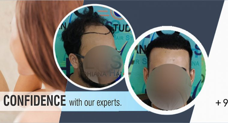 Body Hair Transplant in Ludhiana