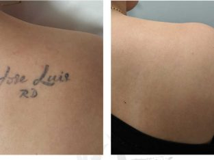 Laser Tattoo Removal in Hyderabad