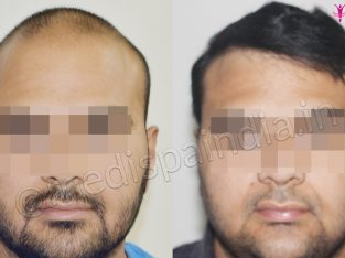 Get The Best Hair Transplant In Pune At Medispa