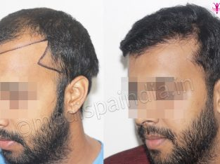 Get the best Hair Transplant in Bhubaneswar at Medispa