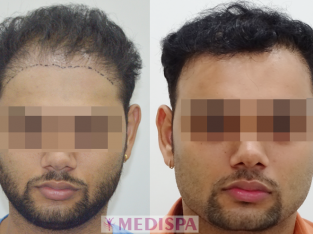 Avail the Best Hair Transplant in Kolkata at Medispa