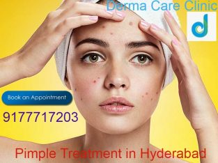 Pimple Treatment in Himayat Nagar, Hyderabad | Pimple Treatment in Hyderabad | DermaCareClinic